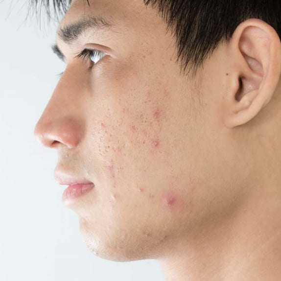 Acne And Acne Scarring
