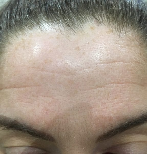 anti wrinkle injections R & R Aesthetics Leeds